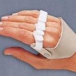 3pp® Radial Hinged Ulnar Deviation Splint Right Hand